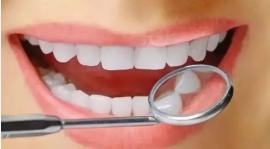 醫生使用什麼方法來幫助我們美白牙齒?