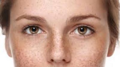 怎麼祛斑效果好又不傷身體皮膚?